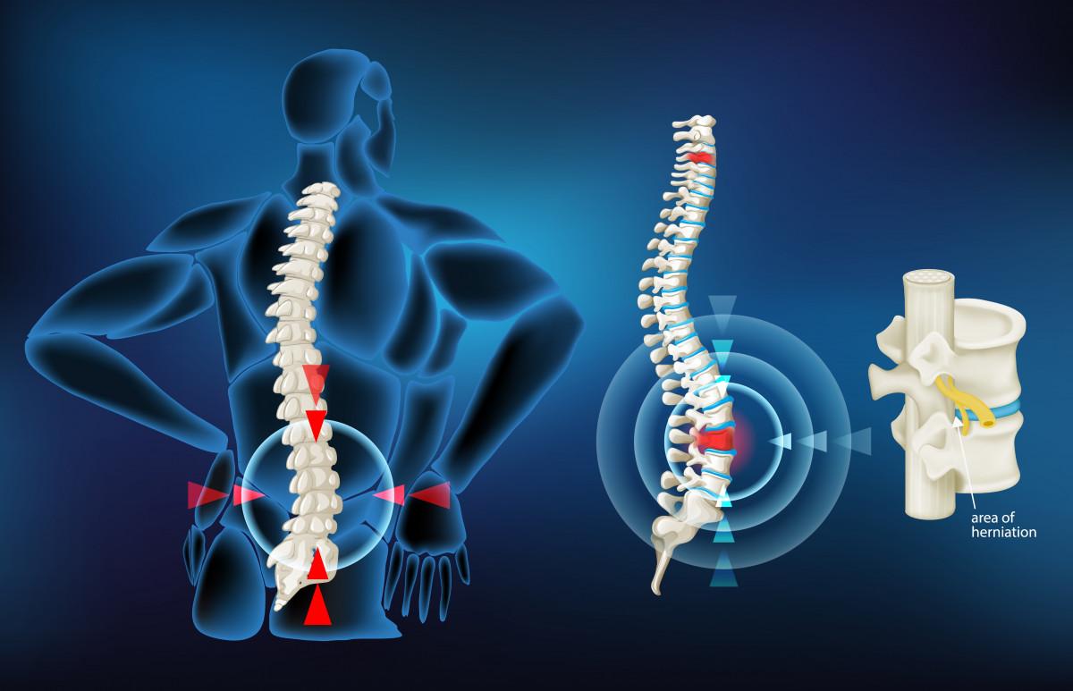 Qué es la hernia discal